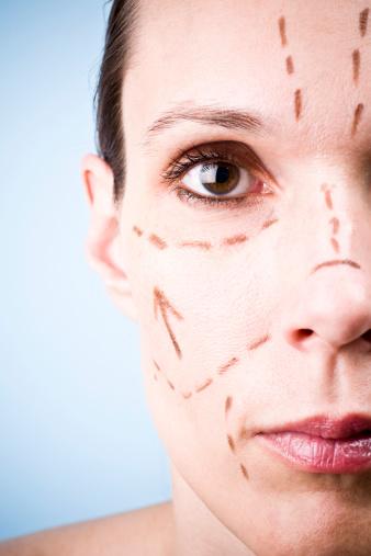 Etes-vous prêtes pour un lifting lyon visage ?